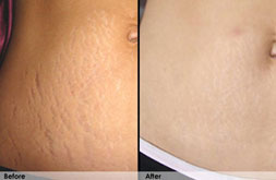 Pictures Before and After Stretch Marks